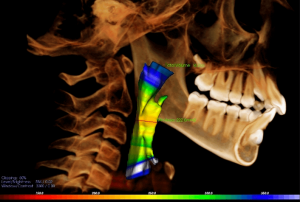 CBCT airway volumetric measurement