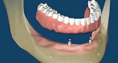 dental-implants-after-surgery
